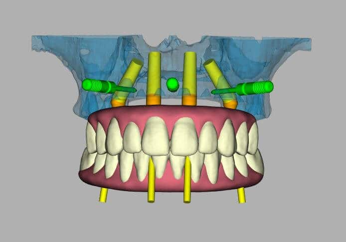 Accurate, predictable dental implant results in San Diego.