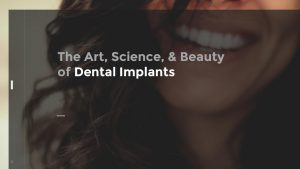 The Art, Science, & Beauty of Dental Implants