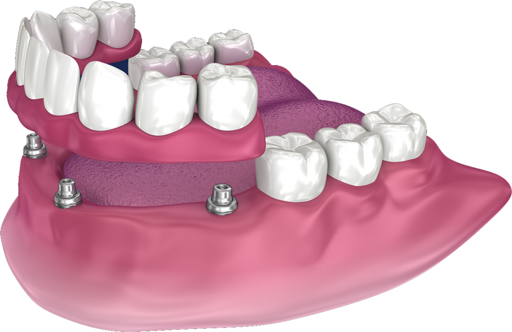 Snap on dentures in San Diego