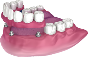 Snap on dentures in San Diego