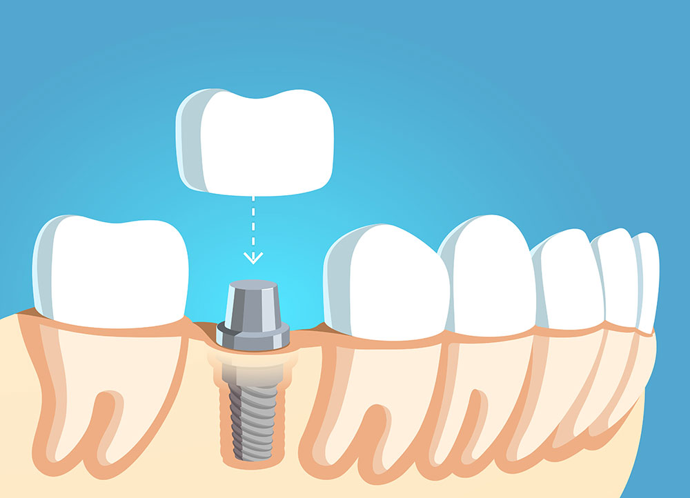 Illustration of dental implant and crown.
