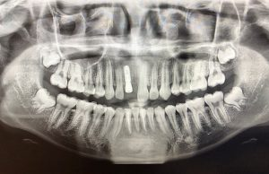 Dental implants rely on the jaw to anchor them in place.